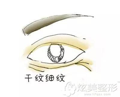 眼周出现干纹细纹的表现