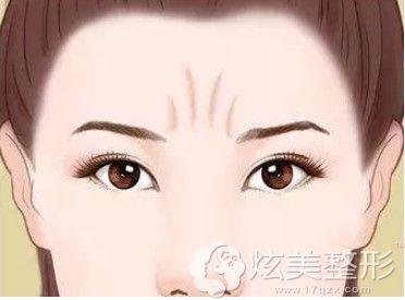 眉间川字纹是如何形成的