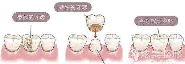 烤瓷牙的过程分享