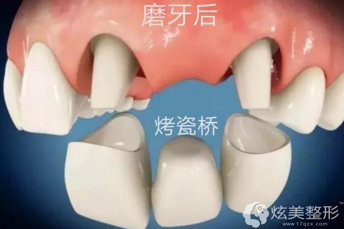 结合牙齿的具体情况看烤瓷牙是否需要磨牙