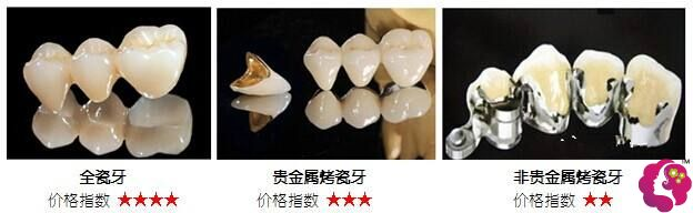 烤瓷牙常见的几种材料