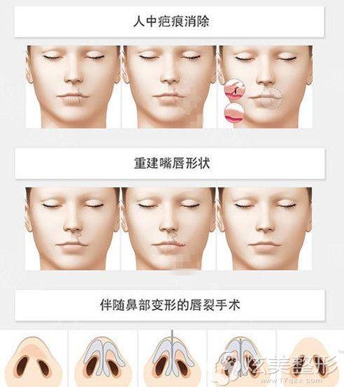 唇裂修复结合年龄不同的三个阶段修复