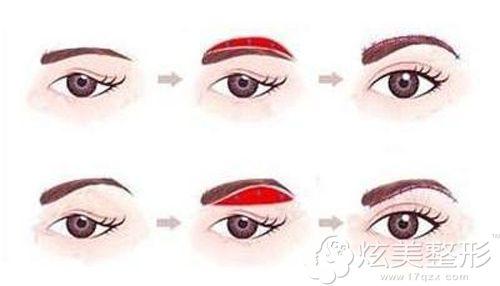 一般常用的两种切眉手术方式原理图