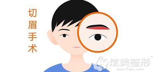为什么说切眉手术是毁容手术
