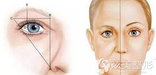 眼睑下垂做切眉术进行改善