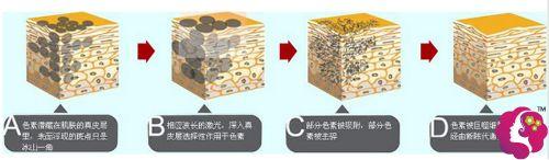 激光去除咖啡斑的手术步骤简易图
