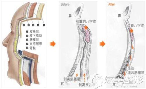 纵深肌理归位术的手术步骤简易图