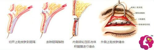 华美医疗美容门诊部做双眼皮手术过程
