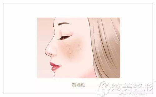 面部呈现妊娠斑的部位