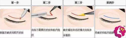 连天美整形医生李冬做全切双眼皮手术过程