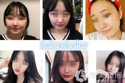 韩国美迪莹整形院长徐范信做面部轮廓案例