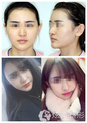 郑成模院长做面部轮廓整形术案例