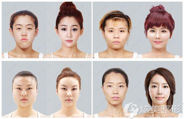 韩国ID面部轮廓整形对比
