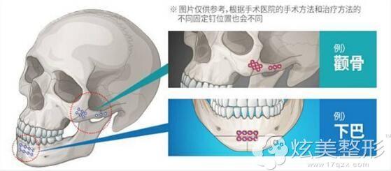 钛钉作为固定骨头衔接的材料
