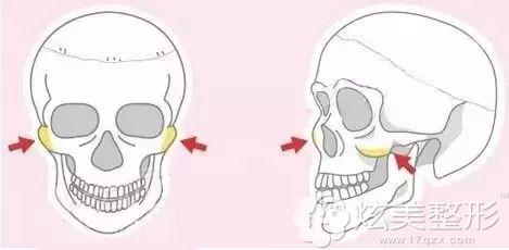 通过颧骨磨低、颧弓内推的手术方式缩小颧弓颧骨