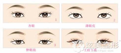 常德做双眼皮价格根据自身眼部情况不同而有差异