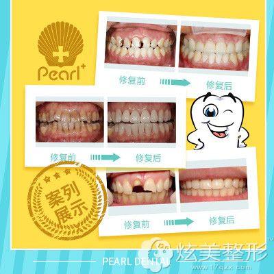 成都圣贝牙科医院种植牙齿案例