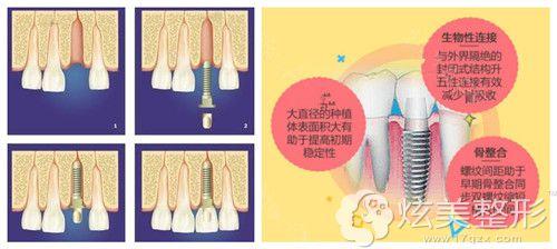 成都圣贝牙科医院采用SG种植牙技术创伤小恢复快
