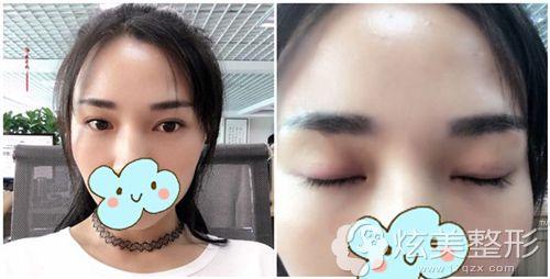 在韩国清潭first做初次双眼皮术后30天效果