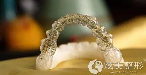 无托槽隐形矫正牙齿的材料