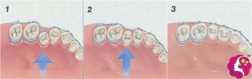 牙套矫正的原理图