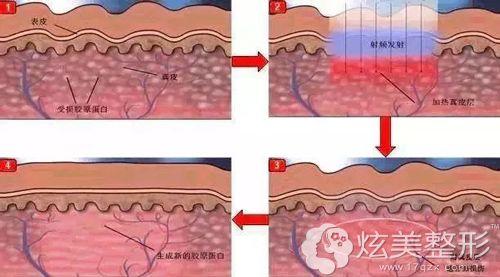 光子嫩肤修复皮肤角质层的示意图