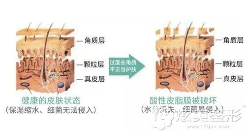 正常角质层的状态和受损角质层的对比
