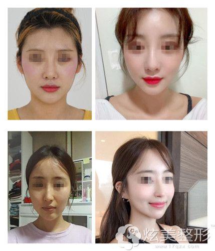 韩国艾恩做mint+vov线面部提升手术案例