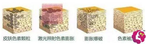 采用激光改善疤痕色素沉积的建议示意图