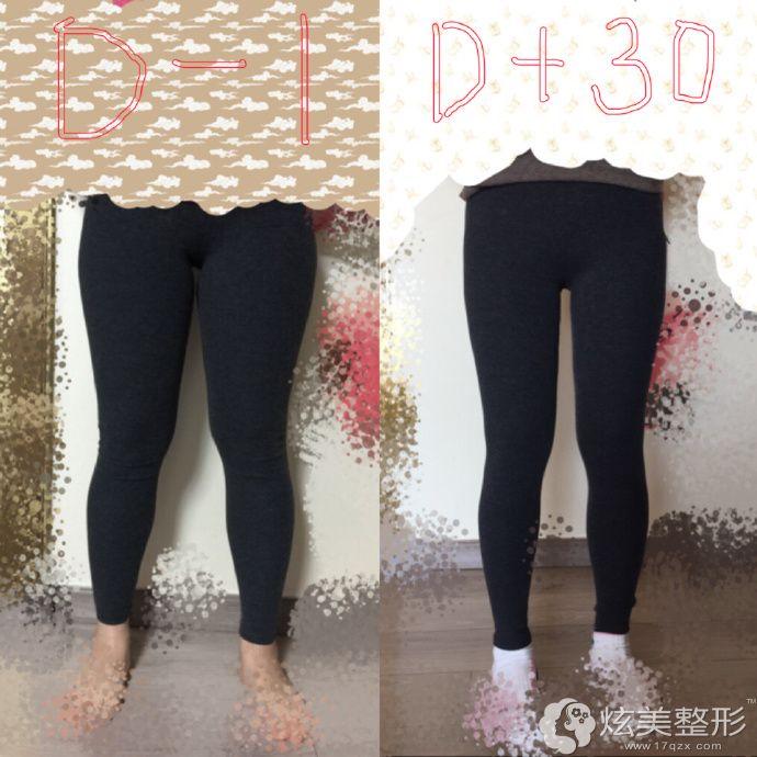 在韩国365mc做大腿吸脂前后对比案例