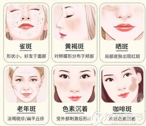 脸上的斑点分类