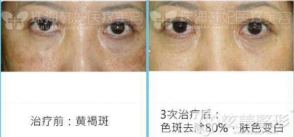 超皮秒治疗前黄褐斑,3次治疗后色斑去除80%