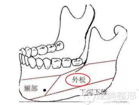 外板决定下颌角整形后正面效果