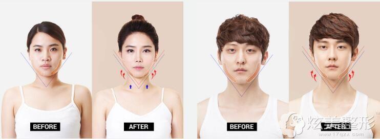 李知赫院长下颌角整形前后对比案例