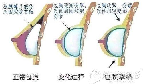 假体隆胸后包膜挛缩导致乳房发硬