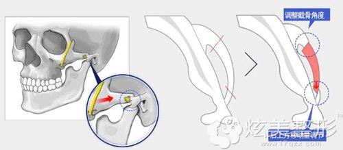 李院长讲无切除提升颧骨缩小术的手术原理