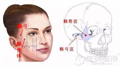 韩国faceline整形讲解颧骨在面部的所在位置