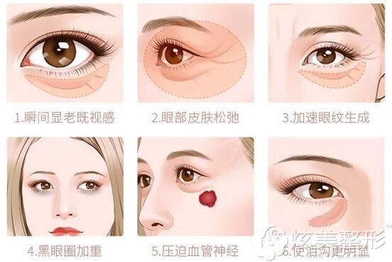眼袋不仅仅是显老同时还有多个问题