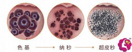 杭州薇琳整形做超皮秒对色素破坏能力更强