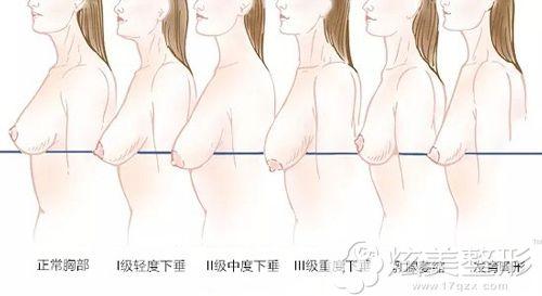 不同程度的乳房下垂示意图