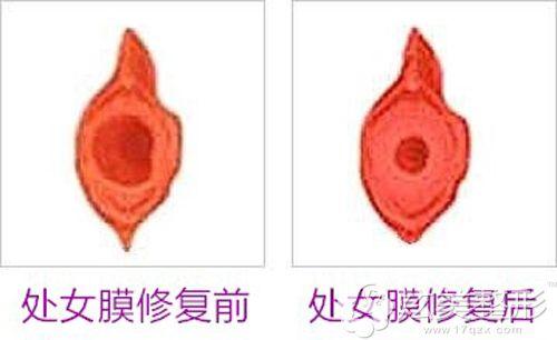 处女膜修复手术的前后对照图