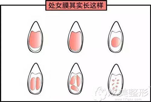正常情况下的处女膜和破损的处女膜