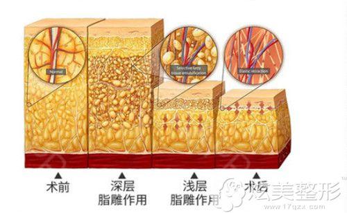深圳美加美做脂肪填充前的吸脂特色