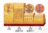 不到上万元能在深圳美加美做一次自体脂肪填充全脸手术吗