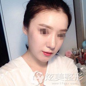在韩国原辰整形医院做下颌角整形术前下巴比较宽大