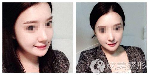 在韩国原辰做下颌角整形术后20天脸型更精致