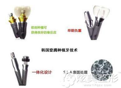韩国登腾种植牙技术优势