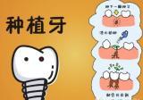 了解过种植牙品牌后,来聊聊韩国登腾种植牙为什么便宜