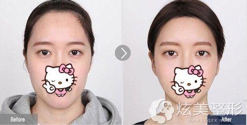 同时做面部轮廓和额头缩小术后20天对比