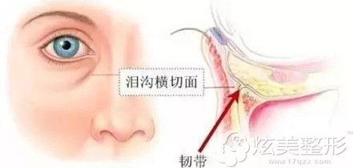眼部具体会出现泪沟的部位